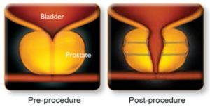 Urolift Procedure For Bph At Jersey Urology New Jersey